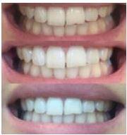 AP24-Whitening Zahnpasta -Für saubere, natürlich weiße, gesunde Zähne – wirkt der Neubildung von Plaque entgegen.